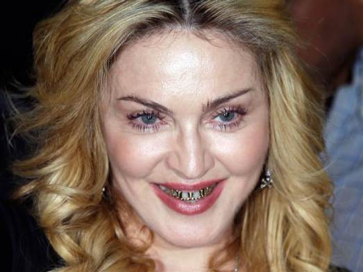 6C8709997-130822-madonna-teeth1.today-inline-large